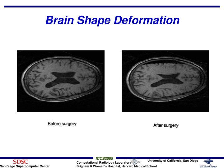 Brain Shape Deformation