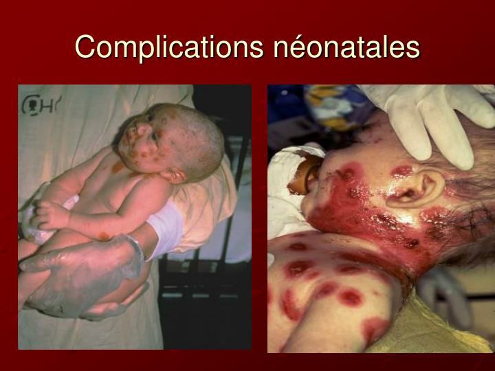 Complications néonatales