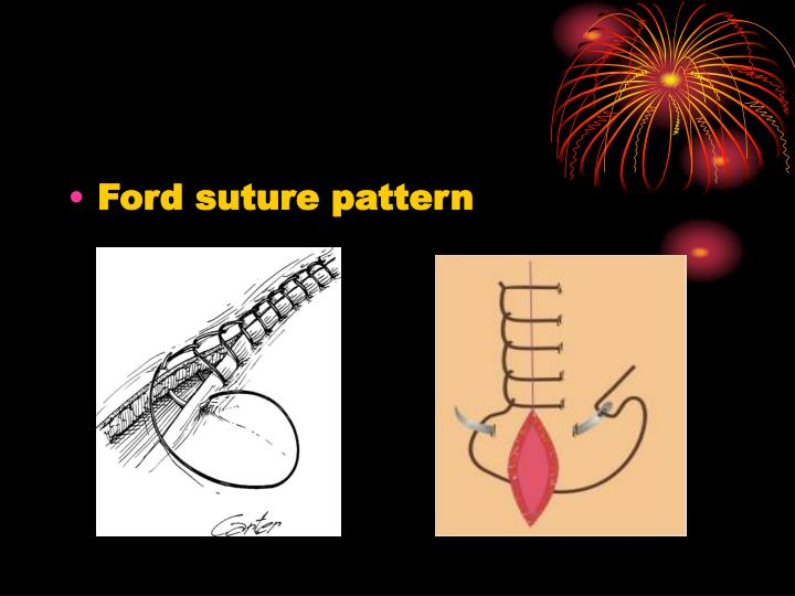 Ford suture pattern