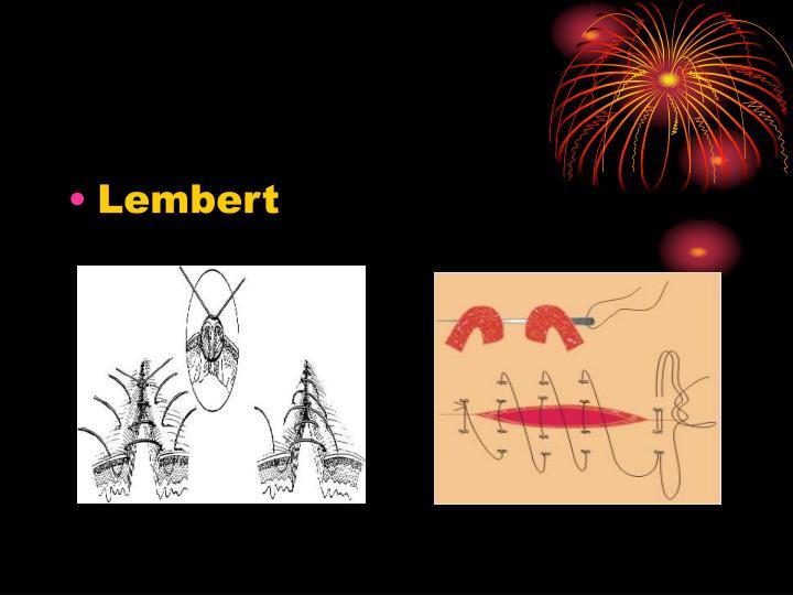 Lembert