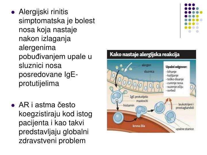 Alergijski rinitis simptomatska je bolest nosa koja nastaje nakon izlaganja alergenima pobuđivanjem upale u sluznici nosa posredovane IgE-protutijelima