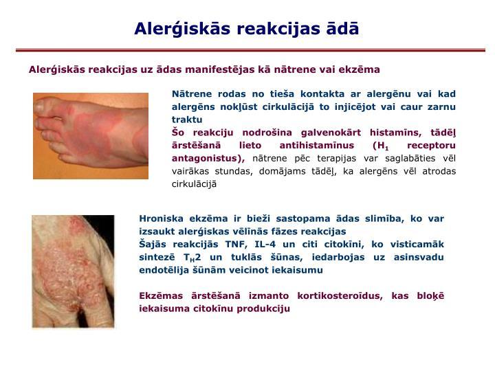 Alerģiskās reakcijas ādā