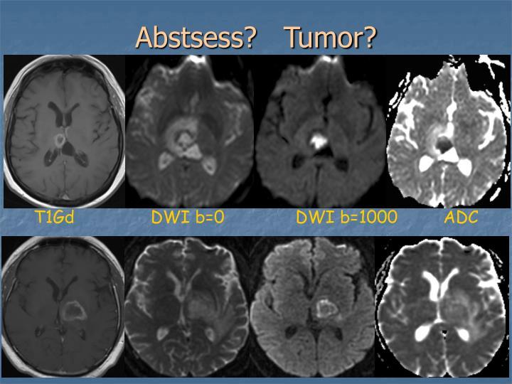 Abstsess?   Tumor?