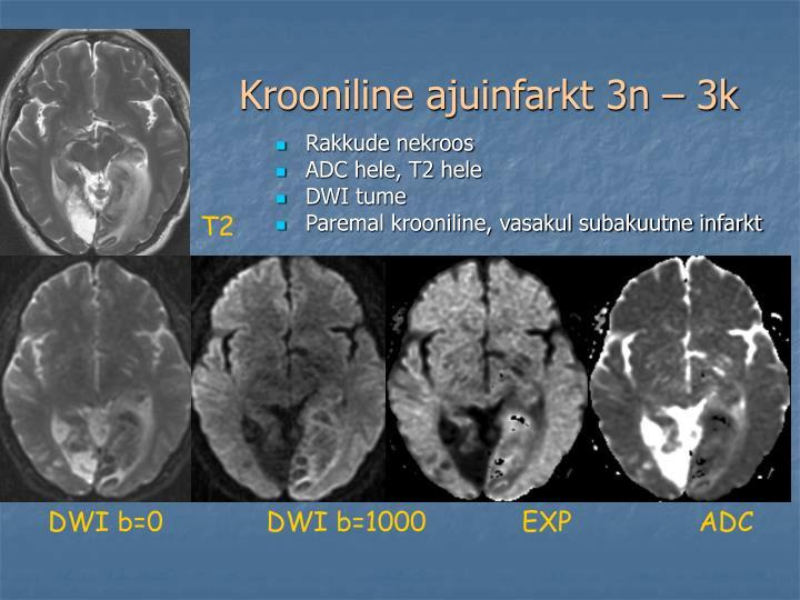 Krooniline ajuinfarkt 3n – 3k