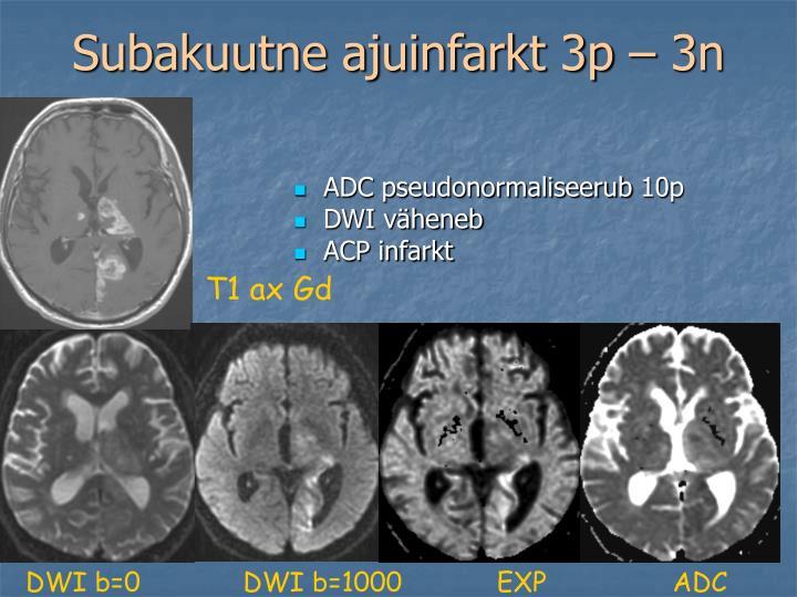Subakuutne ajuinfarkt 3p – 3n