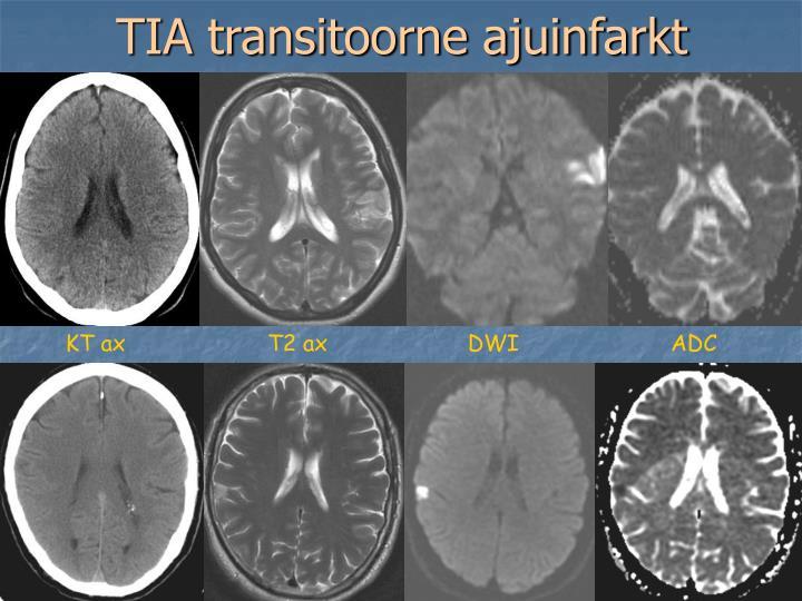 TIA transitoorne ajuinfarkt