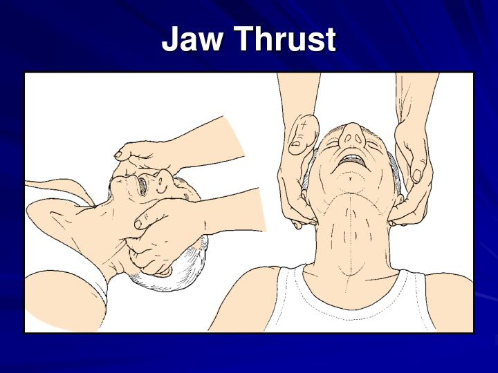 Jaw Thrust