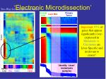 electronic microdissection