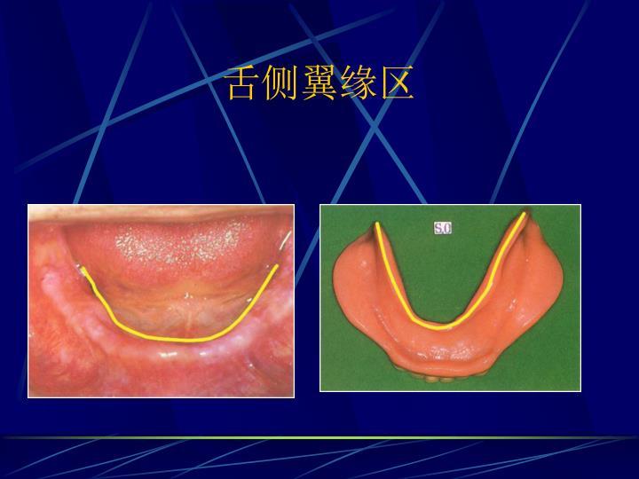 舌侧翼缘区