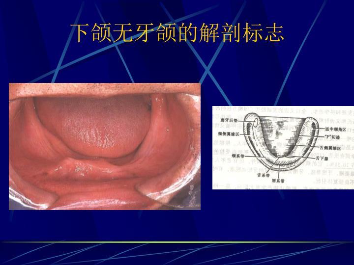 下颌无牙颌的解剖标志