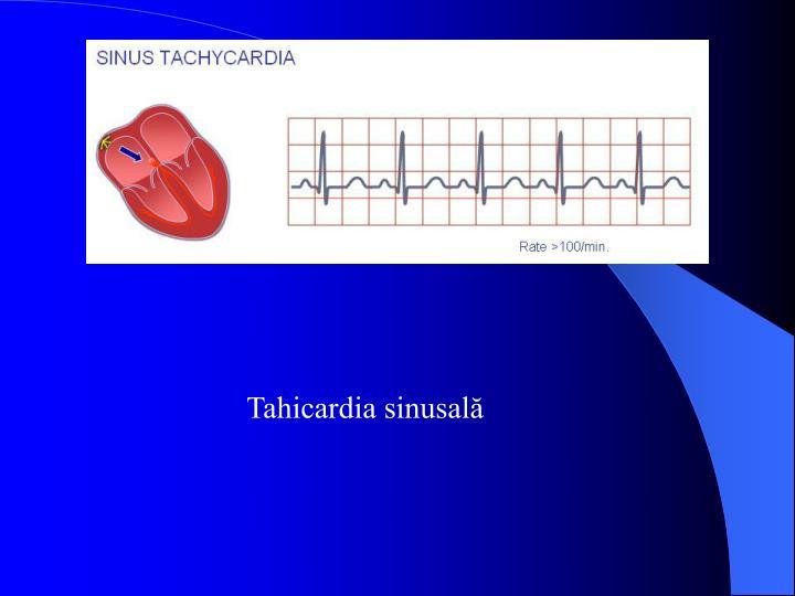 Tahicardia sinusală