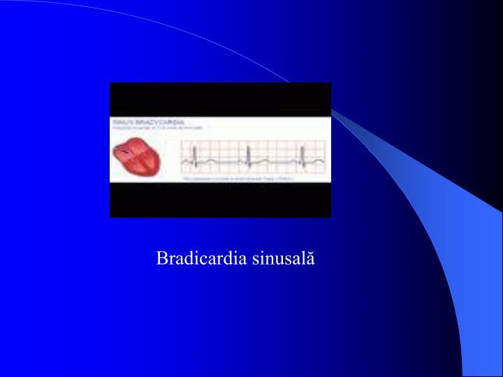 Bradicardia sinusală