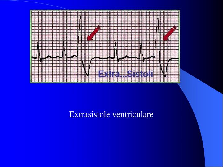 Extrasistole ventriculare