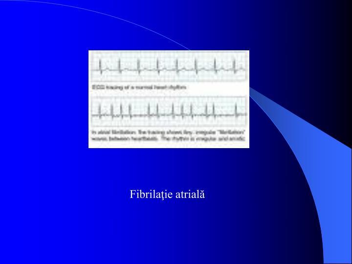 Fibrilaţie atrială