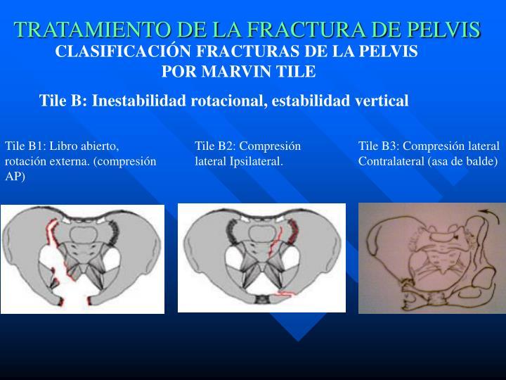 PPT - TRATAMIENTO DE LA FRACTURA DE PELVIS PowerPoint