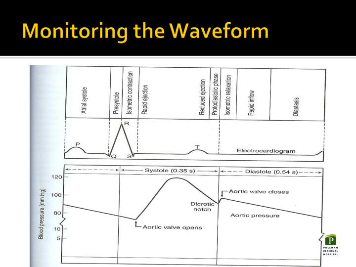 Monitoring the Waveform