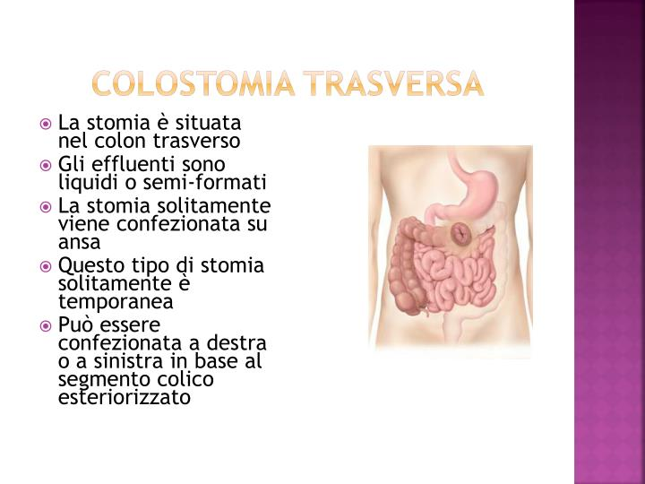 COLOSTOMIA TRASVERSA