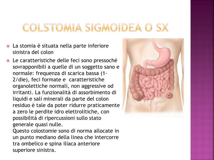 COLSTOMIA SIGMOIDEA o