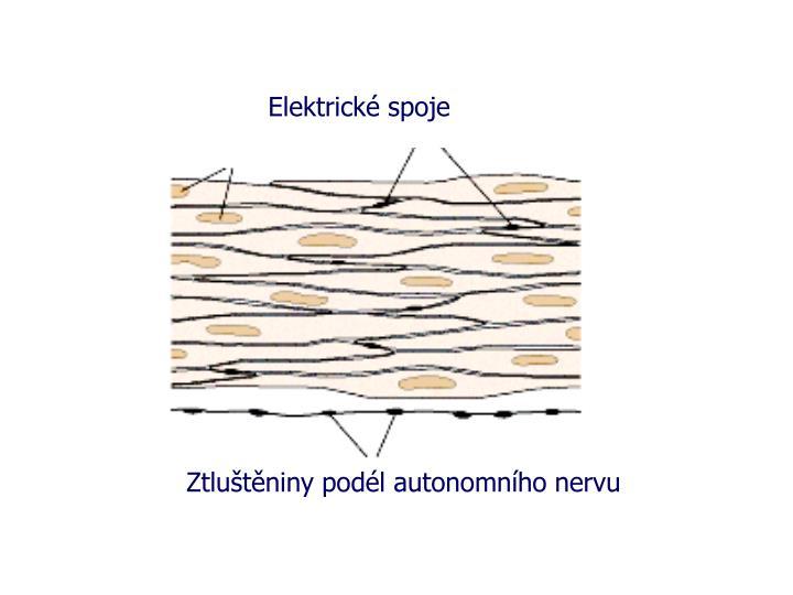 Elektrické spoje
