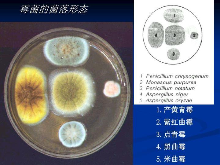 霉菌的菌落形态