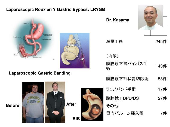 Laparoscopic Roux en Y Gastric Bypass: LRYGB