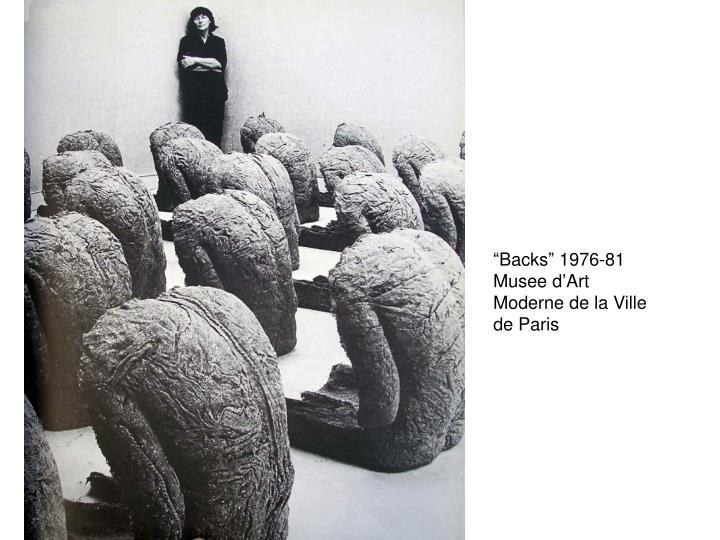 """Backs"" 1976-81"