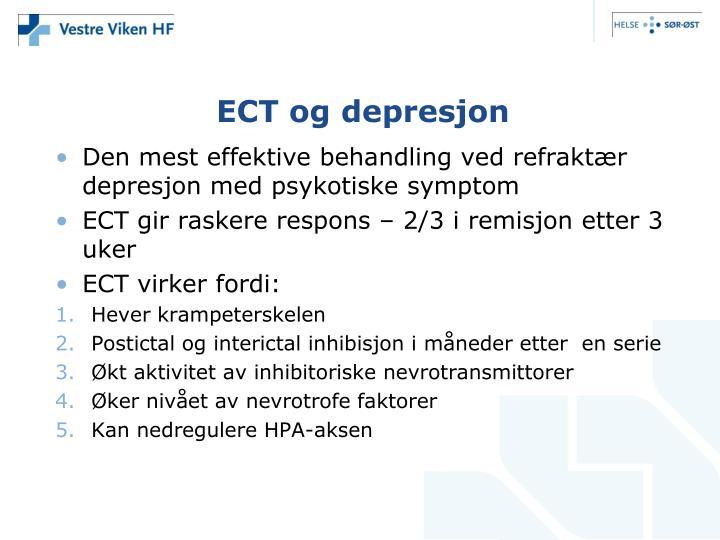 ECT og depresjon