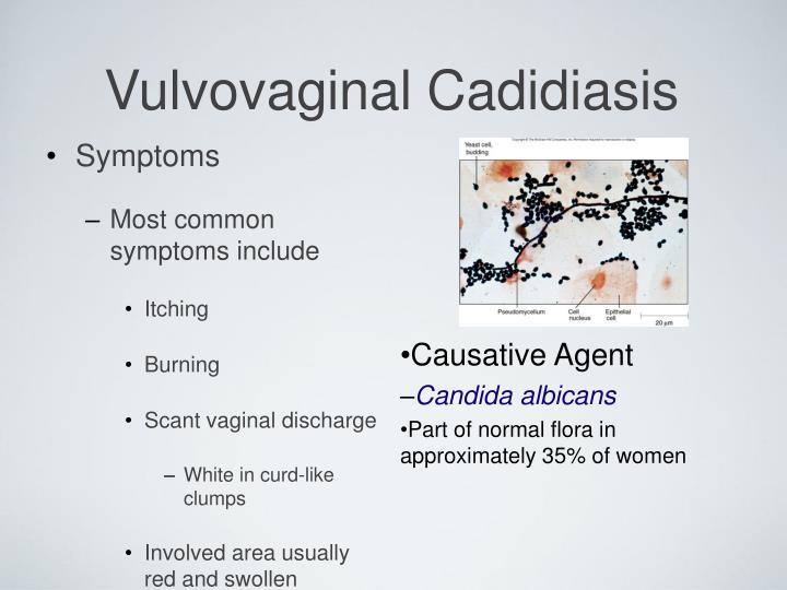 Vulvovaginal Cadidiasis