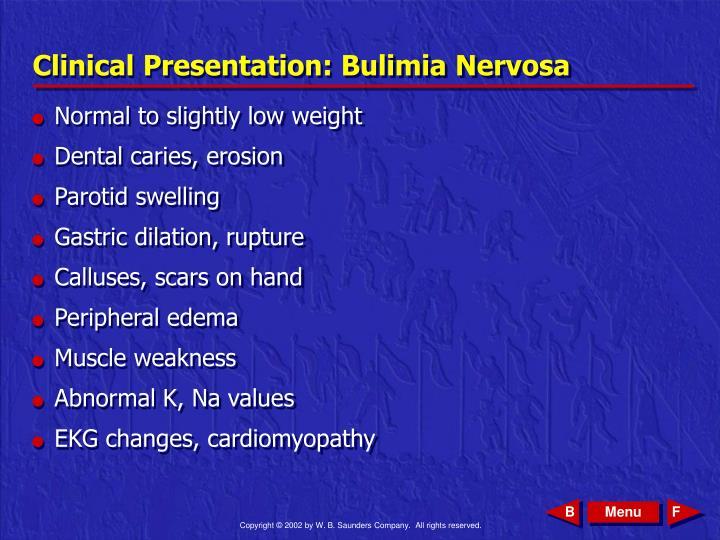 Clinical Presentation: Bulimia Nervosa