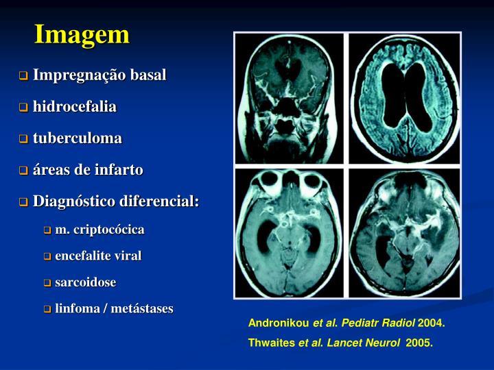Impregnação basal