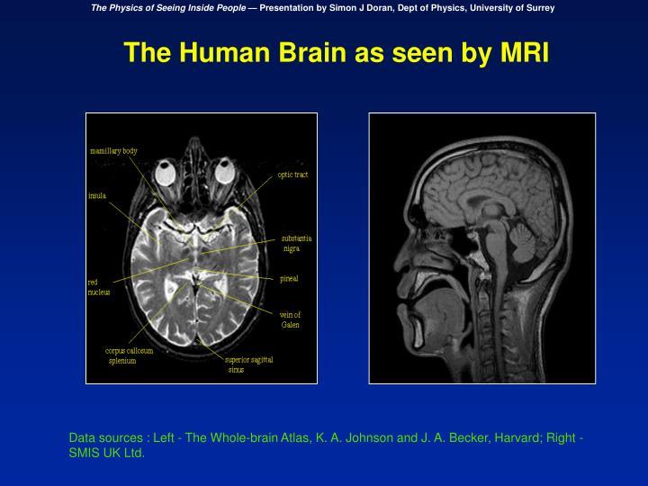 The Human Brain as seen by MRI