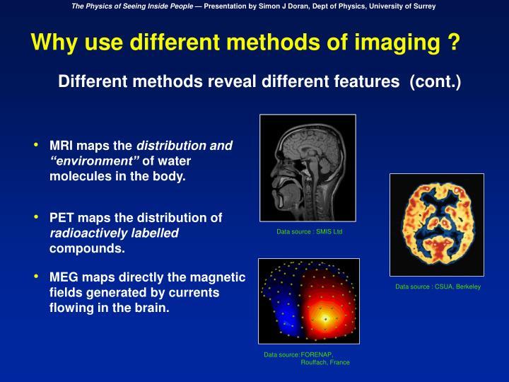 MRI maps the