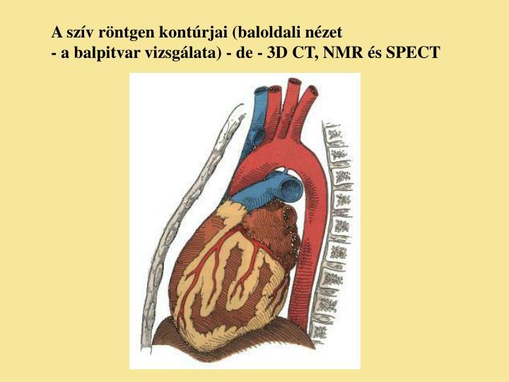 A szív röntgen kontúrjai (baloldali nézet