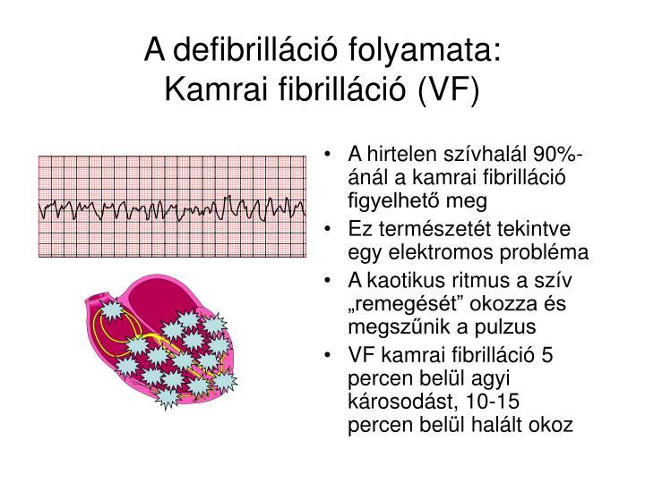 A defibrilláció folyamata
