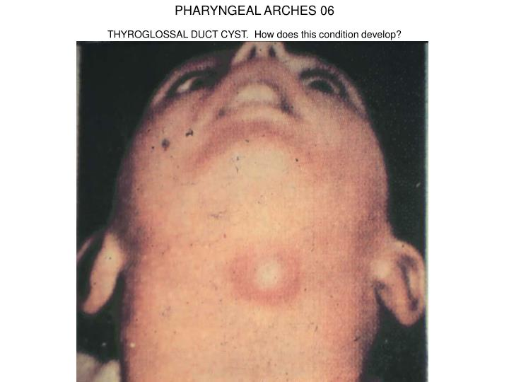 PHARYNGEAL ARCHES 06