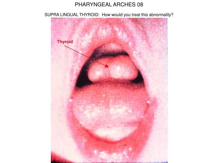 PHARYNGEAL ARCHES 08