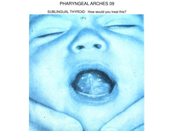 PHARYNGEAL ARCHES 09