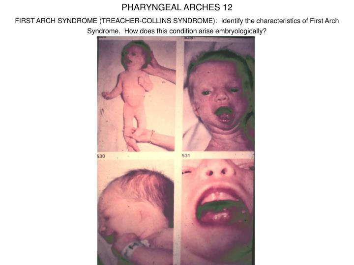 PHARYNGEAL ARCHES 12
