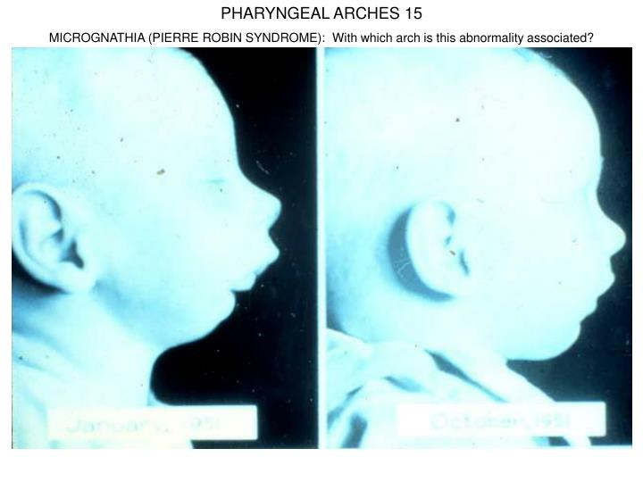 PHARYNGEAL ARCHES 15