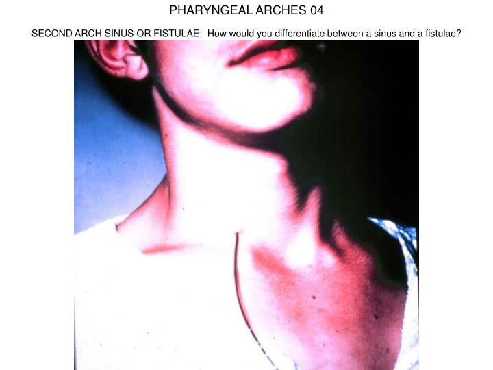 PHARYNGEAL ARCHES 04