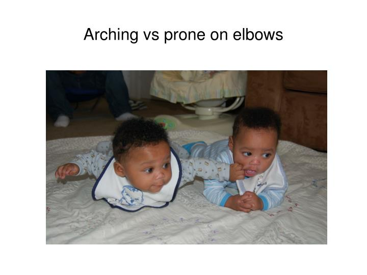 Arching vs prone on elbows