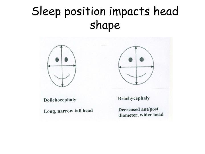 Sleep position impacts head shape