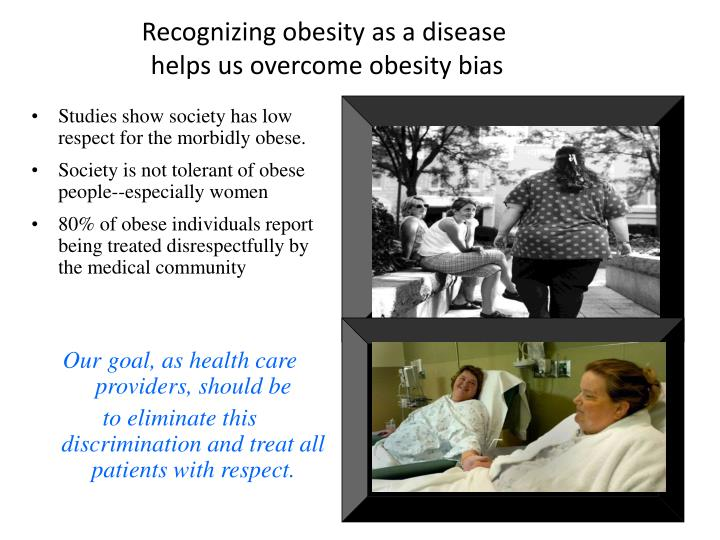 obesity is a disease Last weekend i noticed a billboard on the highway that read: obesity is a disease, it is not a choice nice way to avoid responsibility--put the blame elsewhere this billboard was promoting a weight loss program (not a bad idea, but a misleading headline.