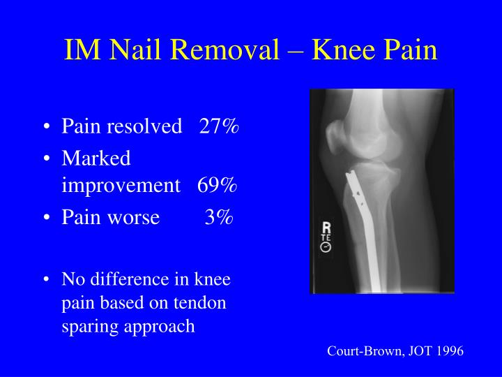 IM Nail Removal – Knee Pain