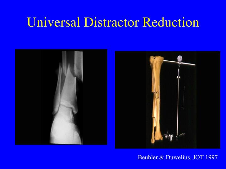 Universal Distractor Reduction