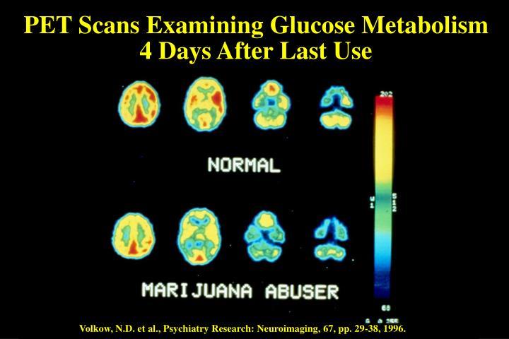 PET Scans Examining Glucose Metabolism