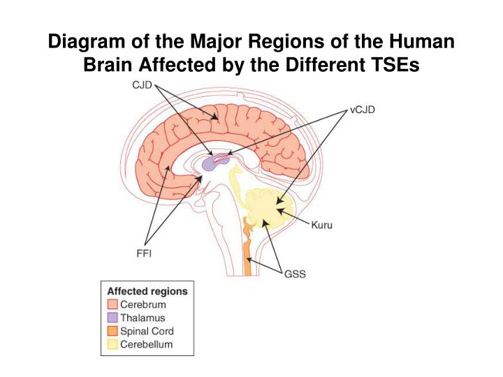 Diagram of the Major Regions of the Human Brain Affected by the Different TSEs