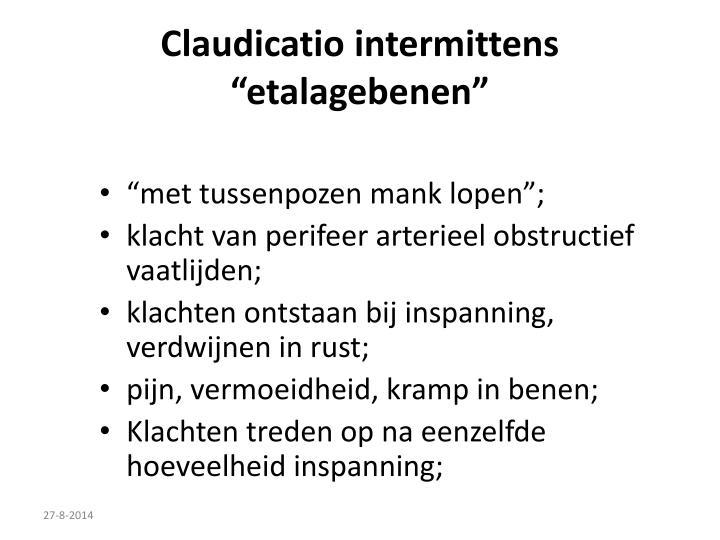 Claudicatio intermittens