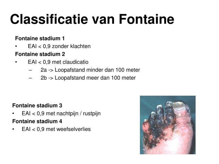 Classificatie van Fontaine