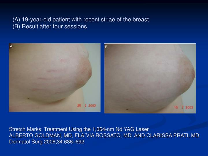 (A) 19-year-old patient with recent striae of the breast.